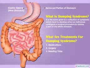 diet for dumping syndrome picture 3