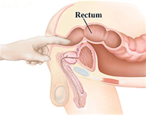 small colon polyp picture 7
