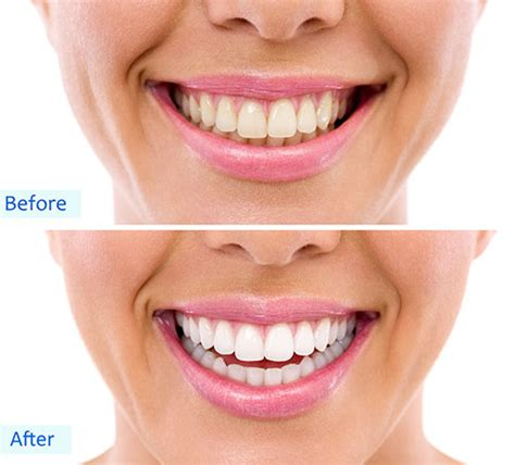 cost to whiten teeth picture 15