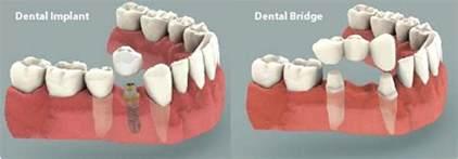 bridges teeth picture 2