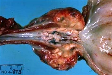 What is a prostate gland picture 14