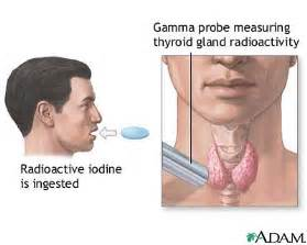 radioactive iodine treatment for hyperthyroidism picture 5