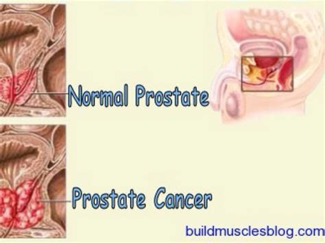 how long is the life span of stage iv prostate cancer picture 6