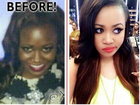celebrity dermatologist with skin whitening pills picture 6