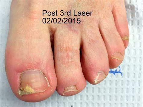 fungus laser treatment va picture 11