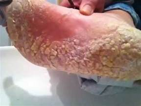 foot skin disease picture 14