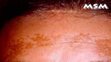 skin pigmentation problems picture 3