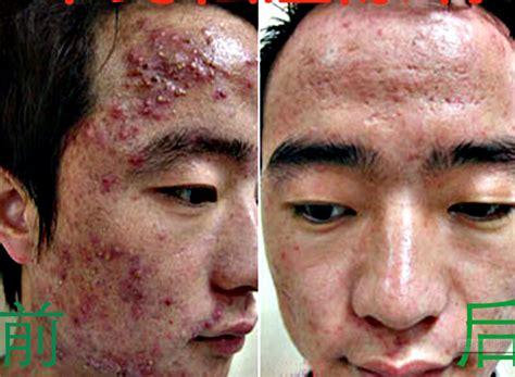 acne bleaching cream picture 2