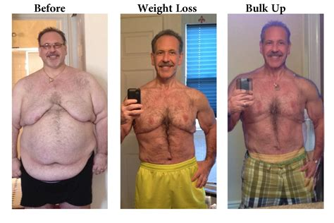 lose skin after weight loss picture 3