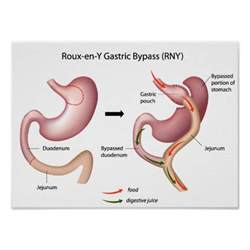 gastrointestinal byp help with financing picture 14