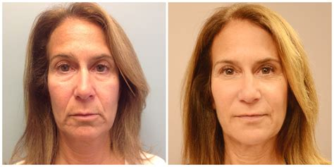 aging botox treatment picture 10