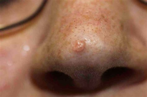 treating advanced cases of basal cell skin cancer picture 5