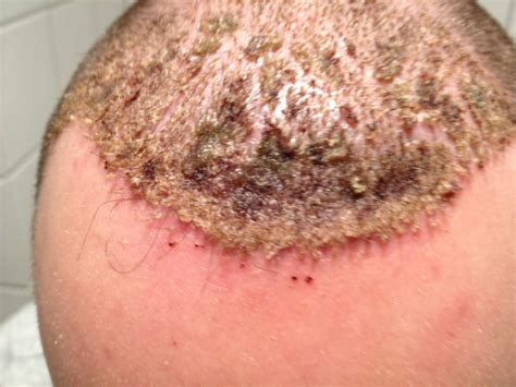 cancer and head acne picture 7