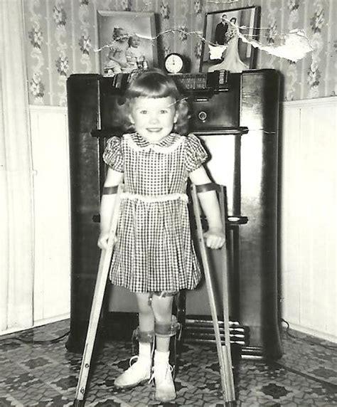 lady peg leg picture 11