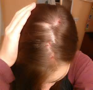 can abraxane cause acne on scalp picture 1
