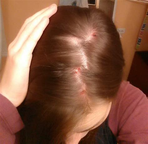 can abraxane cause acne on scalp picture 6