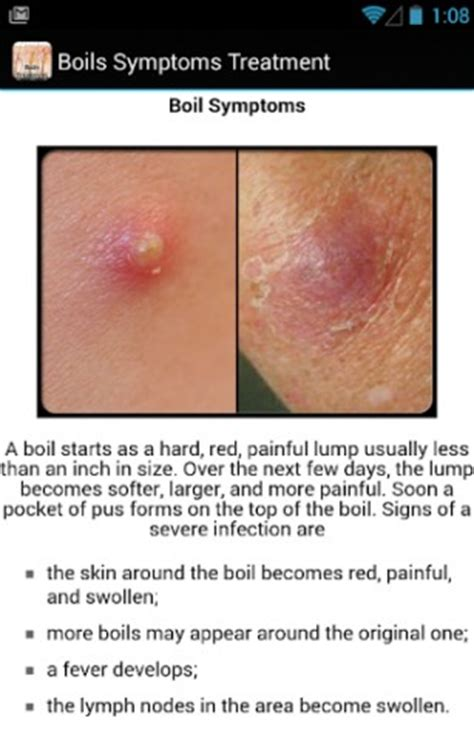 treatment of a boil picture 1