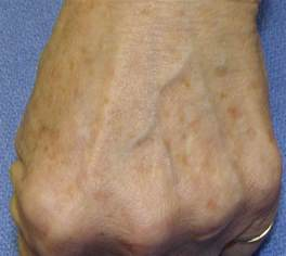 fading liver spots picture 1