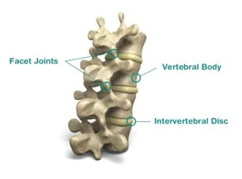 facet joint pain and stabilization picture 9