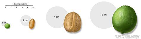 walnut size cancer brain tumor picture 2
