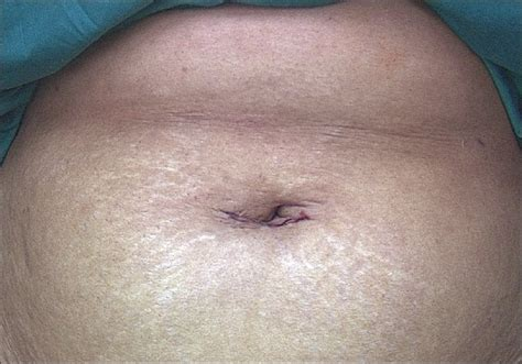 skin texture changes after total hysterectomy picture 3