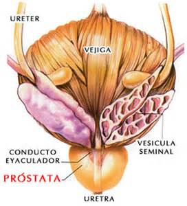 sintomas ng prostate picture 7