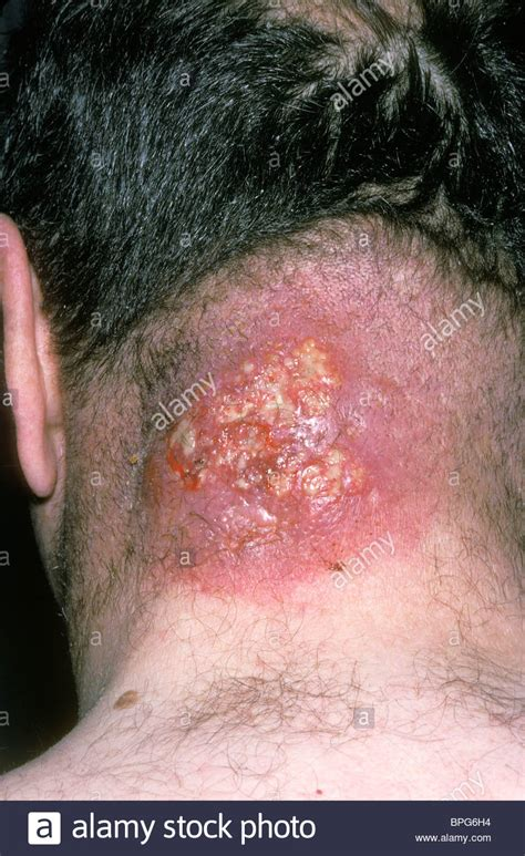 pictures of skin boils picture 6