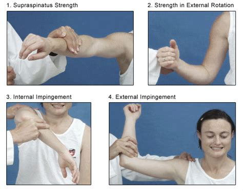 Muscle strength test picture 7