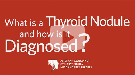 can urine therapy cure thyroid nodule picture 11