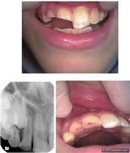 broken roots on teeth picture 3