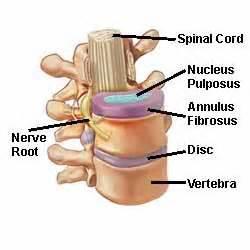 facet degenerative joint disease picture 14
