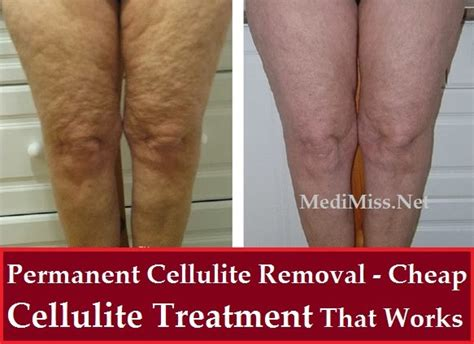 cellutronic cellulite removal treatment picture 2