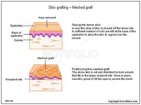 structure of the skin graphs picture 9