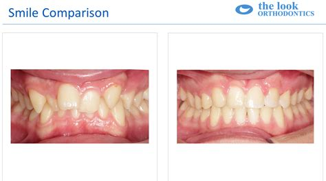 align of h after braces picture 6