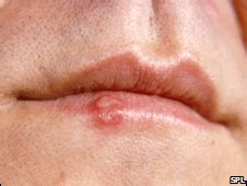 new drugs for herpes virus picture 13