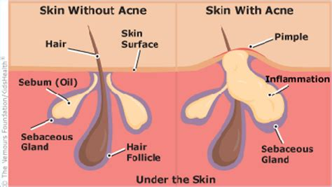 what to use for acne cause by odimune picture 2