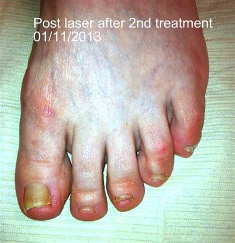 laser treatment nail fungus northern va. picture 7