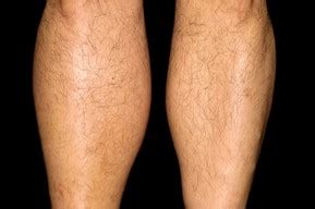 thigh chafing swollen treatment picture 9