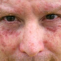 skin sunspot picture 3