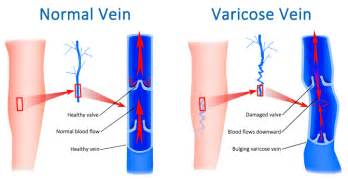 can pressure on nerves to legs cause blood clots picture 2
