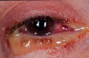 bacterial conjunctivitis picture 1