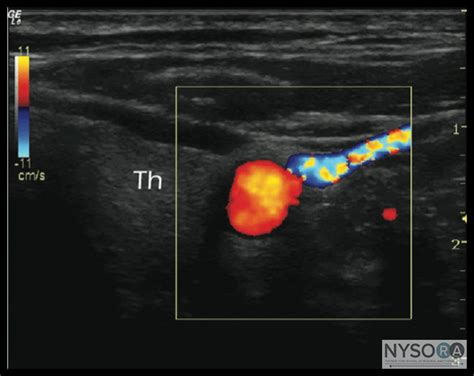 doppler thyroid red blue picture 7