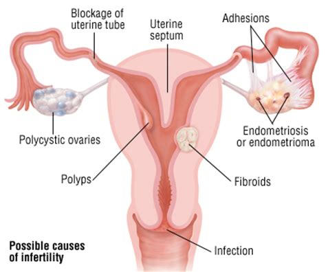 blood flow uterine and ivf picture 5