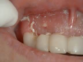 infection in teeth picture 7