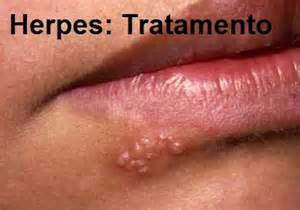 photos of genital herpes virus picture 7