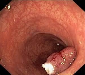 sigmod colon picture 9