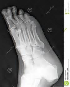 aging foot problems picture 11