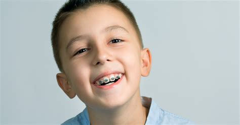 childrens braces for teeth picture 2
