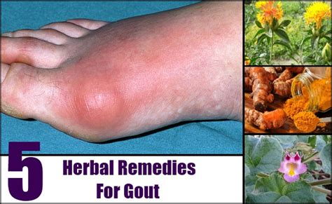 gout herbal picture 6