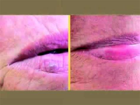 cosmetic skin care vein removal virginia picture 12
